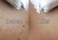 Wine Spill Before & After Job